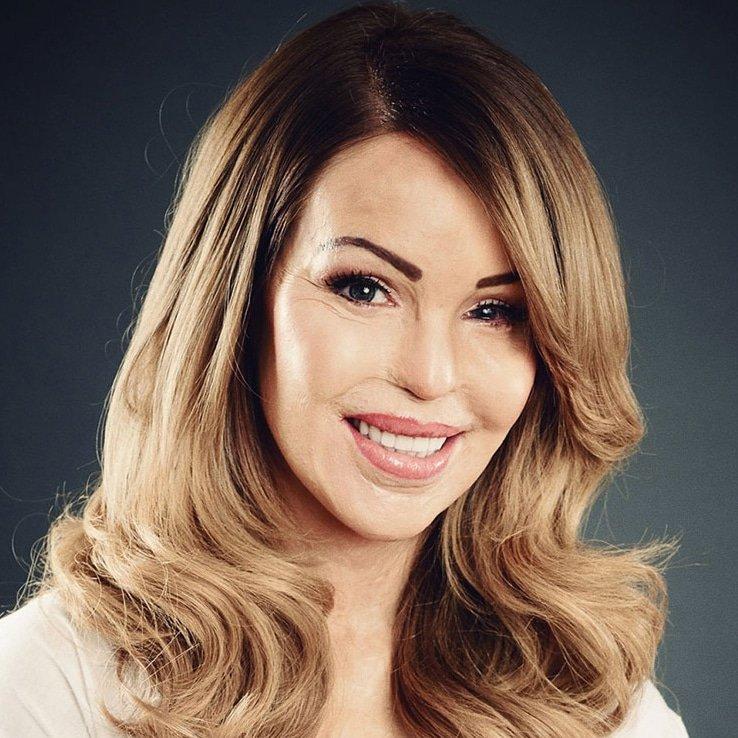 Katie Piper motivational Inspirational speaker TV presenter charity campaigner at Great British Speakers